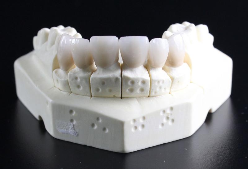 Zahnimplantat als Zahnersatz